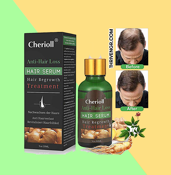 Cherioll hair growth serum to grow back your hairline