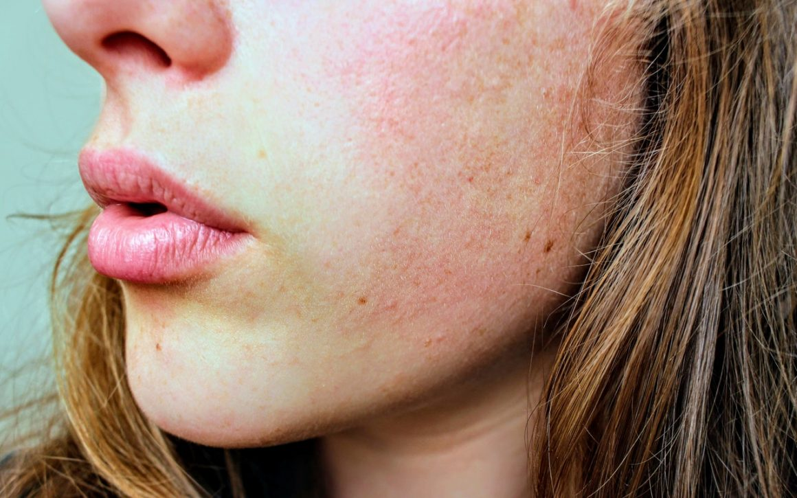 acne on cheeks